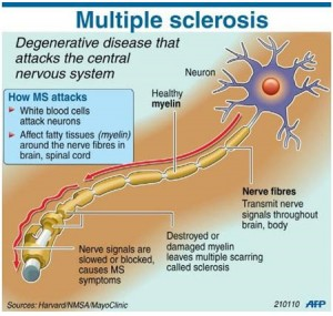 Multiple Sclerosis Image