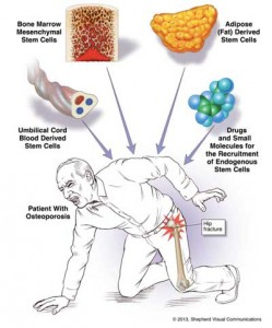 Osteoporosis-stem-cell